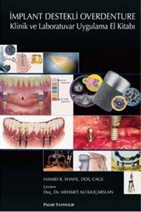 Resim İmplant Destekli Overdenture Klinik ve Laboratuvar Uygulama El Kitabı